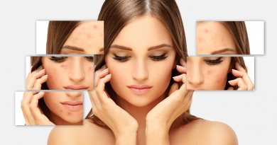 5 Best Way To Clear Acne In 2021